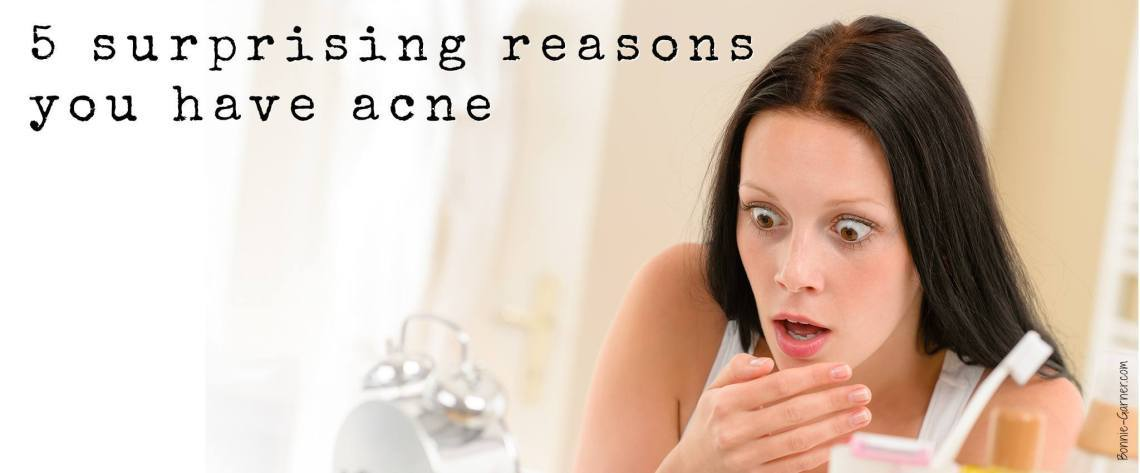 5 surprising reasons you have acne